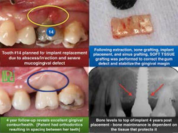 Know how graft you a do failed gum if Skin Graft